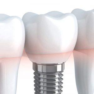 Dent avec un implant dentaire