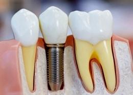 histoire implantologie